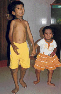 rare disease  Two children suffering from Progeria in Guledagudda, Badami taluk in Bagalkot. DH photo