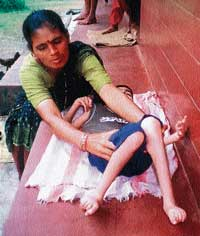A mother taking care of her endosulfan-affected child. dh photo