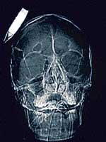 The CAT scan of the Afghan soldier who had an improvised bomb lodged in his head. NYT