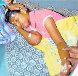Swarnalakshmi, who sustained injuries due to  electrical shock at the car festival of Adishakti Karumariamma  Temple in Rajendra Nagar, on Sunday. DH PHOTO