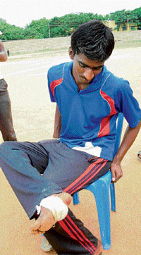 An athlete injured himself stepping on the glass shards on the tracks of the district stadium in Kolar during the taluk level Dasara sports meet on Saturday.  DH file photo