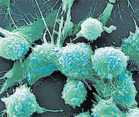 Now, magnets that force cancer cells to 'commit suicide'