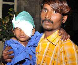 Ravi, 8, whose left eye was operated upon following cracker-related injuries on Tuesday. DH Photo