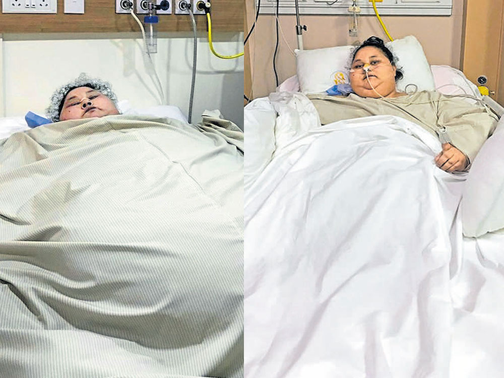 World's heaviest woman successfully undergoes weight-loss surgery