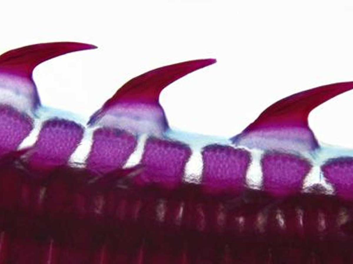 'Our teeth may have evolved from scales of ancient fish'