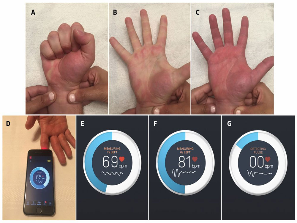 'Smartphone app better at measuring blood flow'