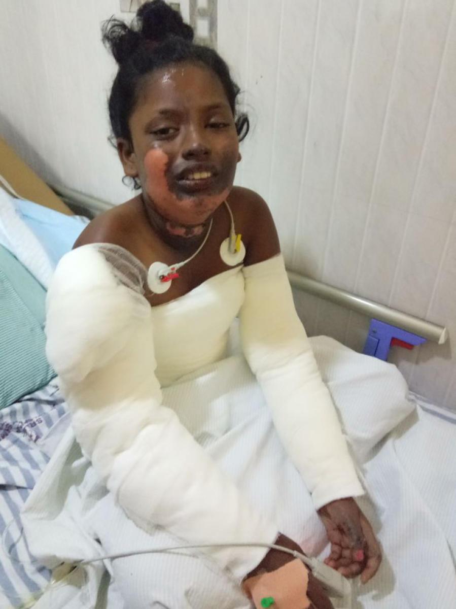 Jannifer jagan burnt injures taking treatement at Blossam multy speciality Hospital at hasaroad near Parappana agrahara in Bengaluru.