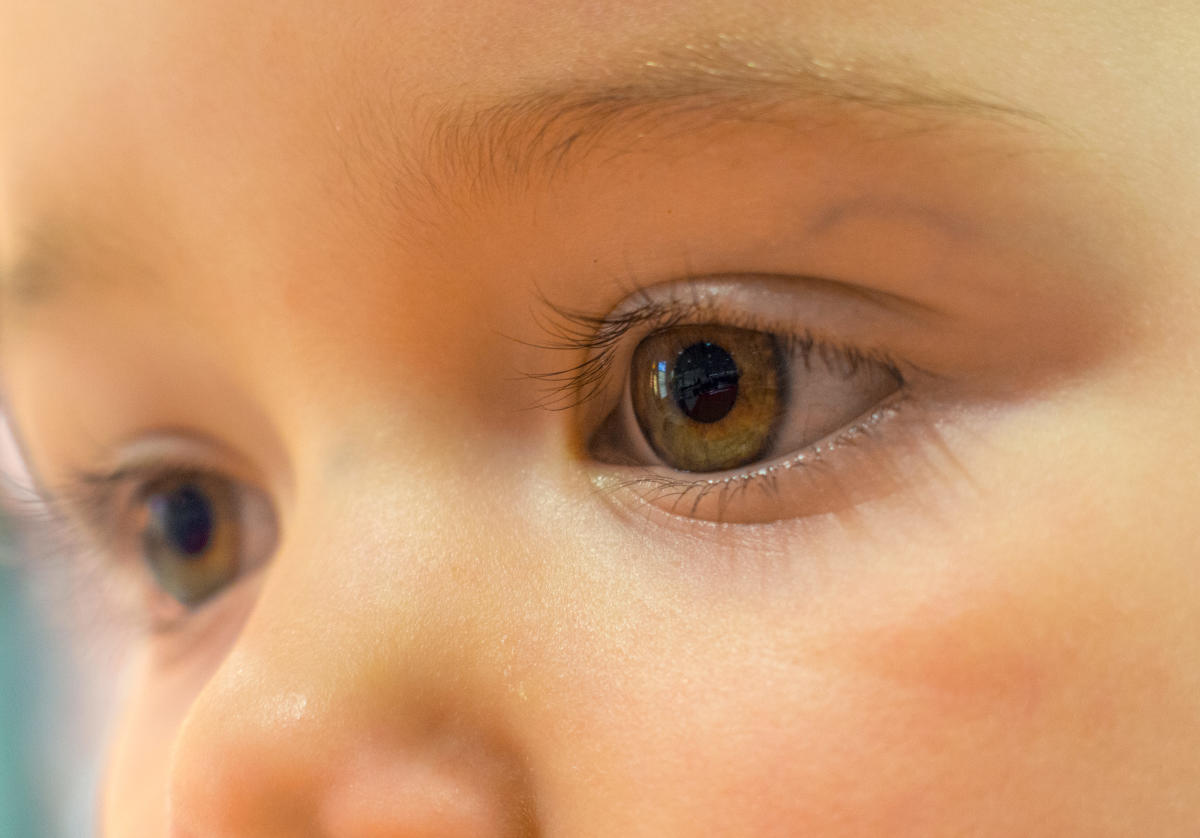 Cataracts are estimated to be present in approximately 15,000 children worldwide,