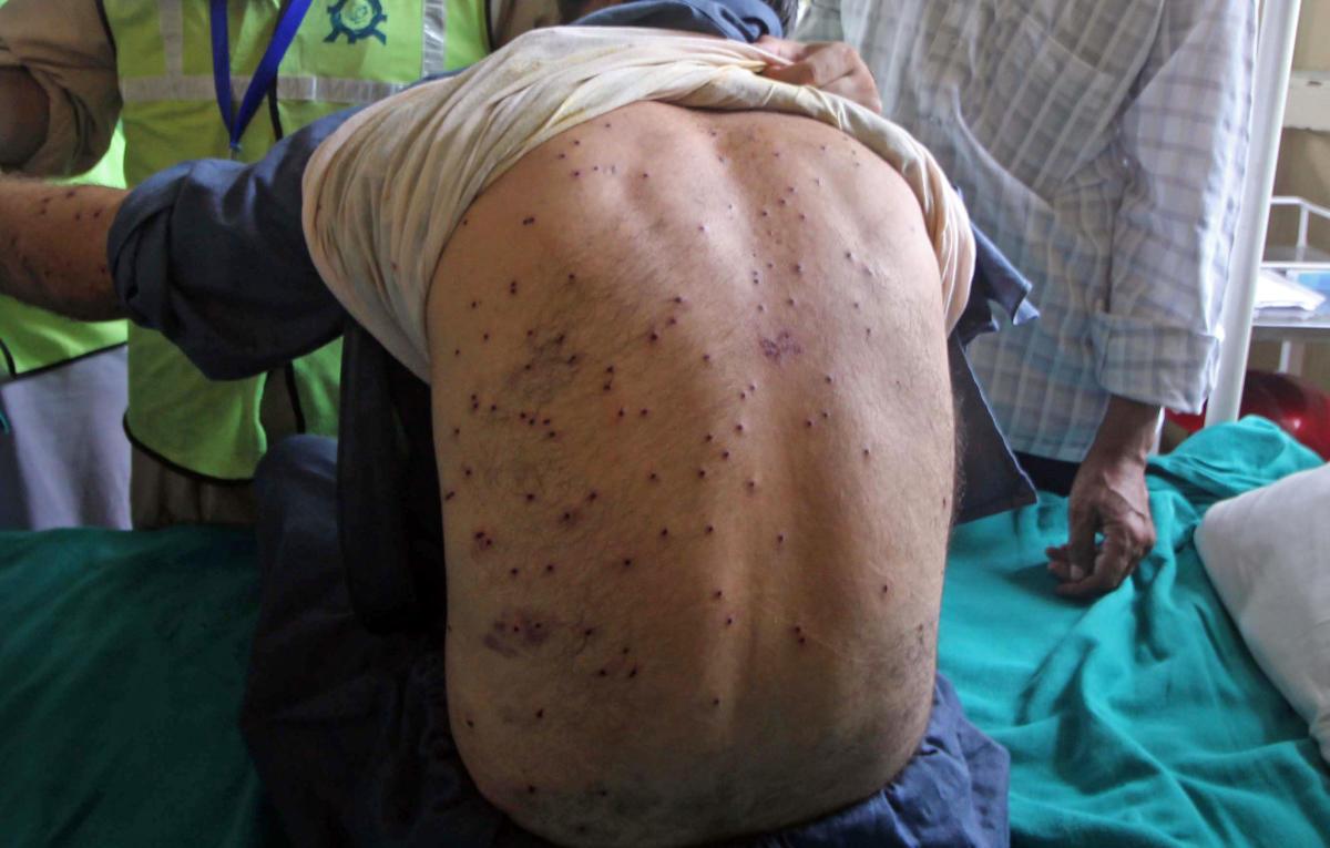 Pellets pierced into the back of a boy