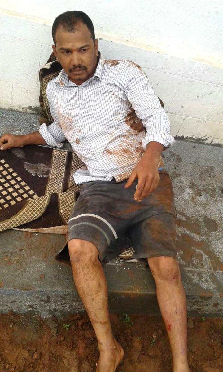 Satish, one of the two persons injured in the elephant attack.