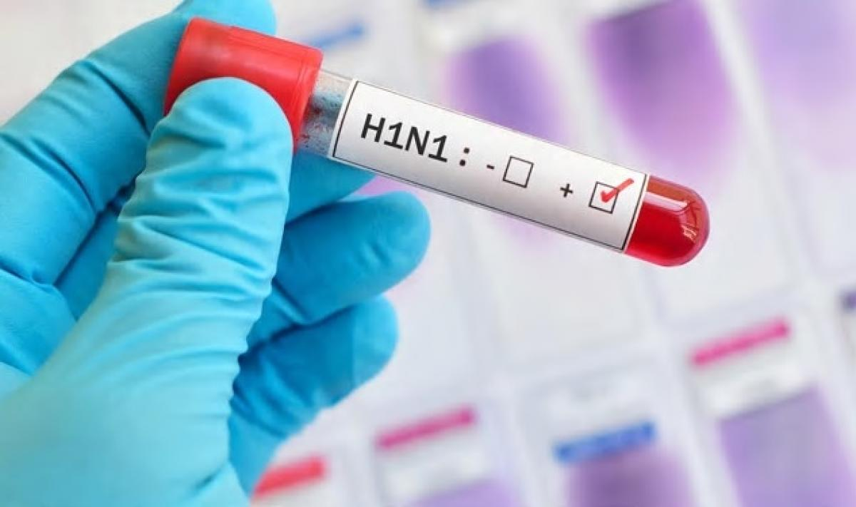 This is the first swine flu death in Meghalaya in 2018. Swine flu had claimed its first victim in Meghalaya in 2009, health officials said on Monday. (Image for representation)