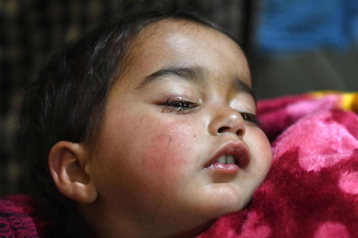 Hiba was playing inside her house in Shopian when clashes broke out between protesters and security forces in the wake of an encounter where six militants were killed on Sunday, the infant's mother Marsala Jan said. AFP Photo