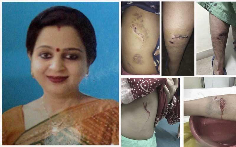 Neha Jain. The injuries inflicted on Neha Jain by the German Shepherd.