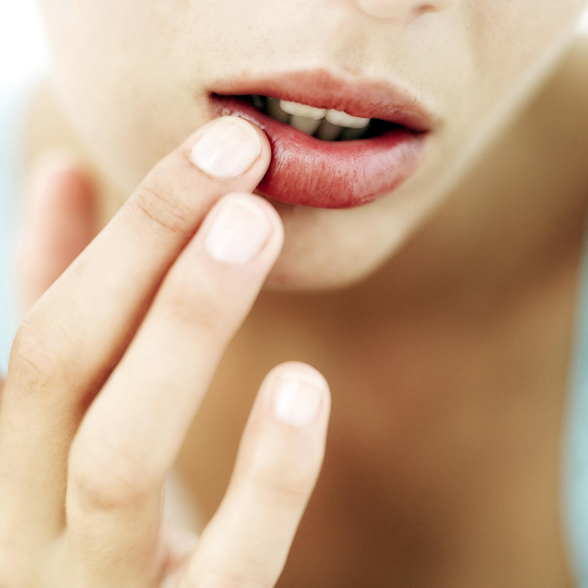 Dry lips are common in winter. Using emollients can resolve it.