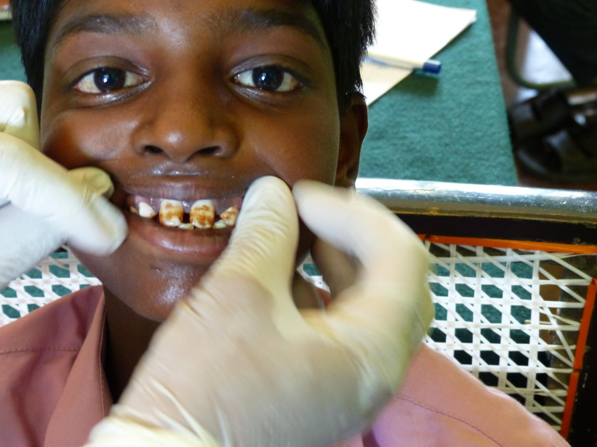 A boy from Pavagada affected by dental fluorosis.