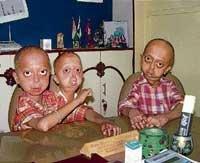 Family battles with rare progeria disease