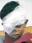Abandoned kid gets eye sight