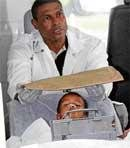 Needles extracted from Brazil boy