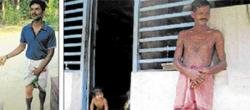 Naxal suspect youth alleges torture by cops