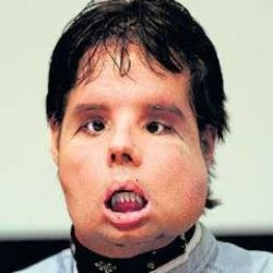 First full face transplant man displays new look