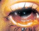 Conjunctivitis cases on the rise in Bangalore