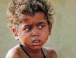 State govt begins identifying malnourished children