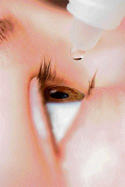Steroids can induce glaucoma