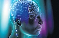 Brain pacemaker to treat anorexia