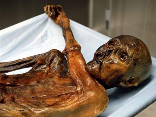 Iceman Otzi suffered brain damage before death