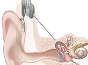 Scientists 'print' 3D bionic ear