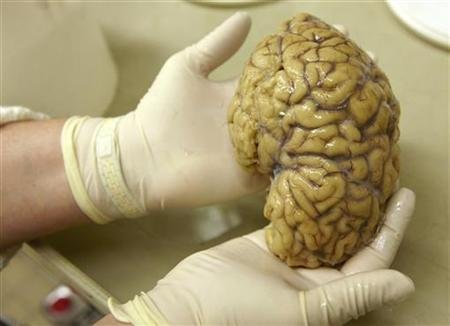 US man arrested for stealing brains, selling them online