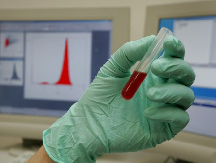 Scientists to test artificial blood in humans