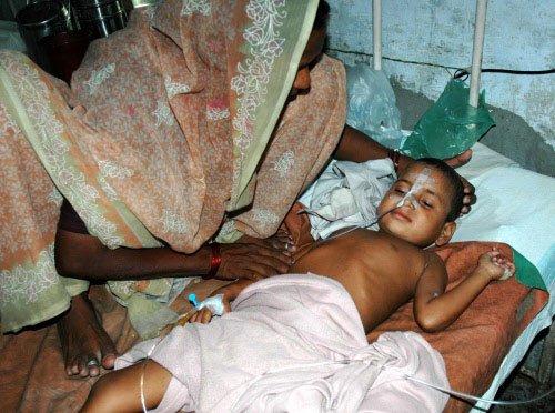Encephalitis virus claims over 100 lives in Bengal