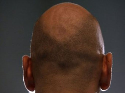 New drug restores hair growth in human trials