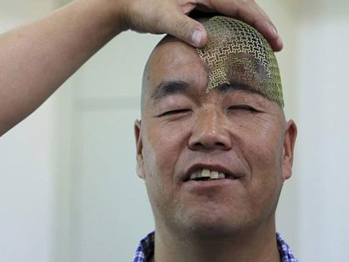 Man recovers using 3D-printed prosthetic skull replacement