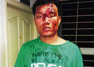 Manipuri student, friends attacked 'for not knowing Kannada'