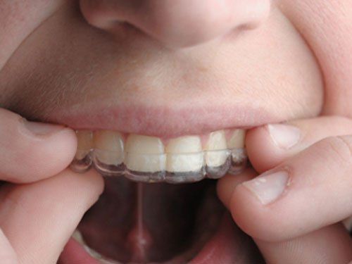 Teeth aligners, now in transparent mode