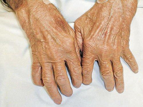 Women more prone to arthritis, say doctors