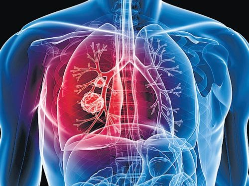 Lung cancer not of men or smokers alone, warn doctors
