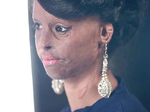 Acid victim to fashion model