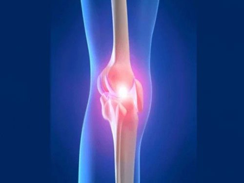 Researchers find new way of healing large bone fractures