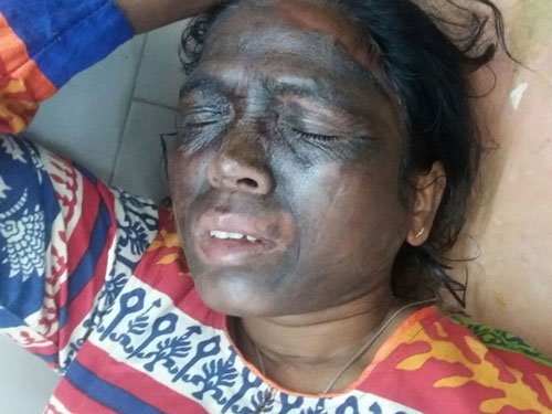 Unidentified men hurl acid like chemical on Soni Sori