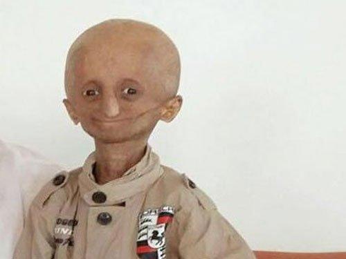 Nihal Batla, face of Progeria in India, passes away