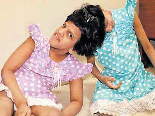 Parents refuse to take home Siamese twins