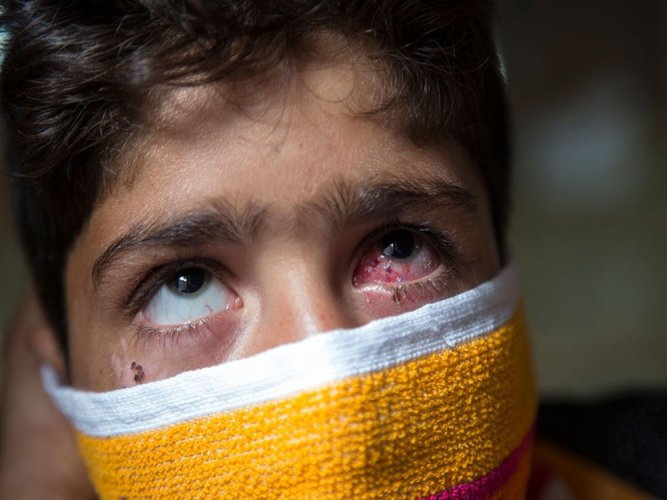 Hit by pellets, 13-year-old battles for life in hospital