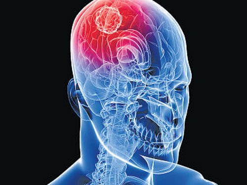 Unravelling brain tumour's lethal nature