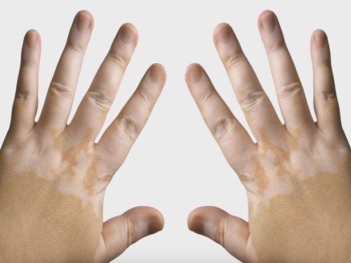 Woman with vitiligo denied massage therapy, spa apologises