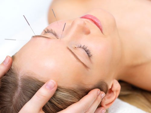 Acupuncture may reduce hot flashes in menopausal women: study