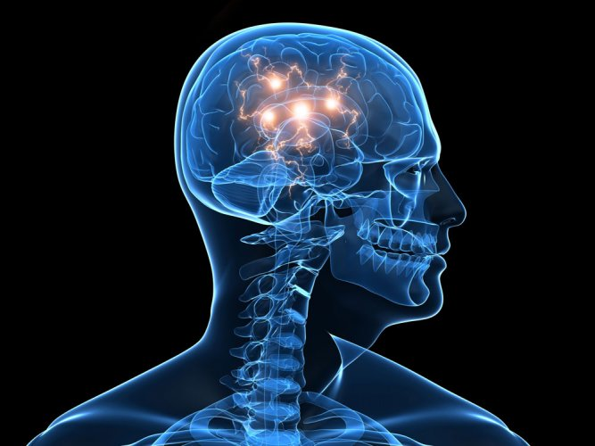 Reduced blood flow in brain area causes stuttering: study