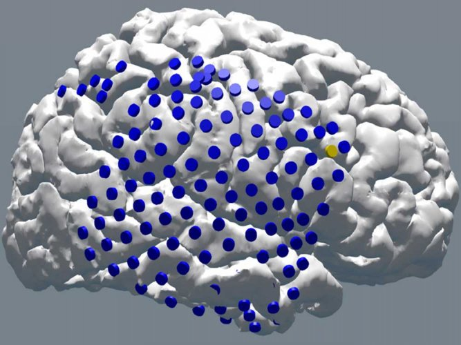 Pacemaker for brain may aid memory